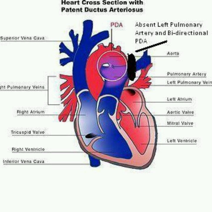 17 Best images about Patent Ductus Arteriosus (PDA) on Pinterest ...