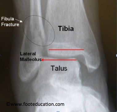 Displaced Fibular Fracture with Displaced Ankle Joint