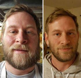 10 fotografías de antes y después que muestran lo que sucede al dejar de beber alcohol