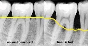 If you are having any bone issues, you might benefit from Dr. Brand's most recent blog.  Rebuilding Bone Naturally http://www.thebrandwellnesscenter.com/apps/blog/show/43412745-rebuilding-bone-naturally