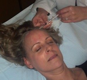 Detailed description of the Botox injection process for chronic Migraine