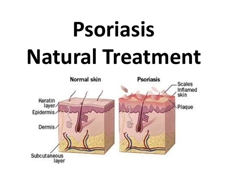 psoriasis-natural-treatment-natural-psoriasis-treatment by Remedies via Slideshare