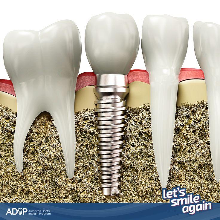 Are you ready to change your life? Have Dental Implants at Prices You Can Afford!  Learn more about us here: http://www.adip-us.com/ #LetsSmileAgain  -- ¿Está preparado para transformar su vida? ¡Coloque Implantes Dentales a un precio que puede pagar!  Conozca más sobre nosotros aquí: http://www.adip-us.com/ #LetsSmileAgain