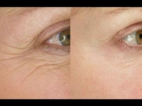 Banish Under Eye Wrinkles Forever: Facial Exercise Toning And Firming Secrets To Look Younger