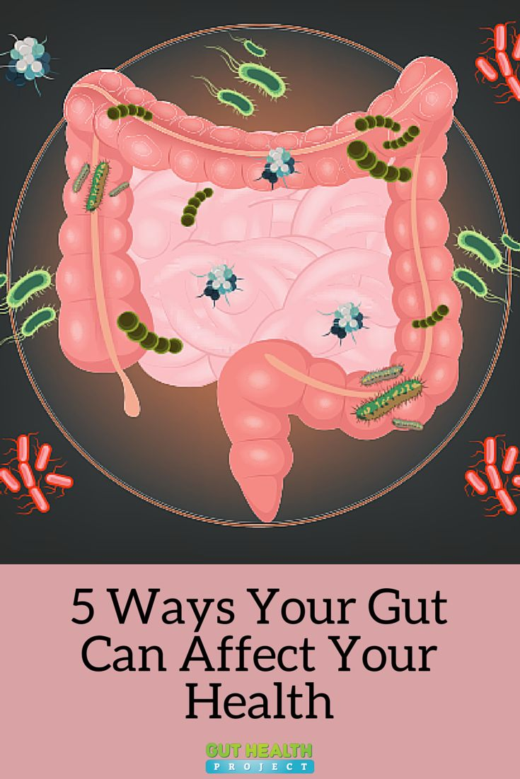 5 Ways Your Gut Can Affect Your Overall Health | Gut Health | Digestion | Holistic | Natural Remedies | http://guthealthproject.com/5-ways-your-gut-can-affect-your-health/