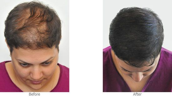 Scalp micro-pigmentation is a highly specialized technique of applying micro-insertions of pigment into the scalp to mimic the appearance of natural hair follicles. - Nouveau Clinic Atlanta