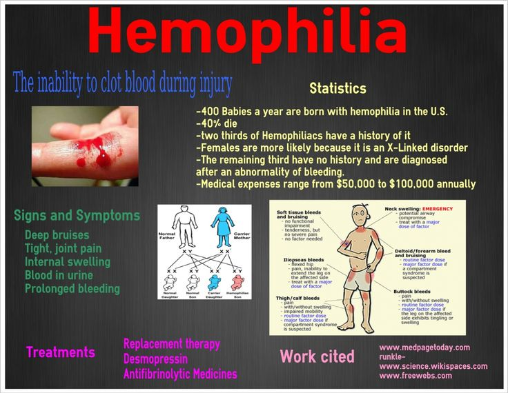 the disease hemophilia in the medical research Hemophilia b is listed as a rare disease by the office of rare diseases (ord) of the national institutes of health (nih) this means that hemophilia b, or a subtype of hemophilia b, affects less than 200,000 people in the us population.