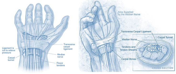 carpal tunnel surgery recovery Does Cutting the Ligament Have Consequences?