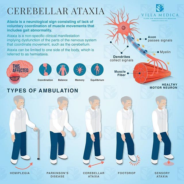 Learn more about ATAXIA ⤵️ • • ✅What's Ataxia? ✅Types of ambulation • • #neuro #neurology #neurologia #neurorehabilitacion #fisioterapia #physicaltherapy #physiotherapy #physio #ataxia #infographic #info #ambulation #cerebellar #medicine #rehabilitaci