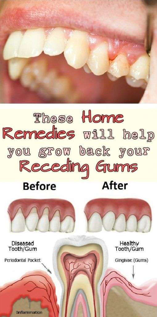 These Home Remedies will help you grow back your Receding Gums