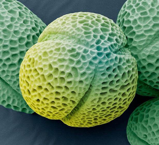 Des grains de pollen au microscope électronique grain pollen microscope electronique allergie 06 technologie bonus