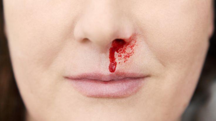 Fünf Tipps gegen Nasenbluten