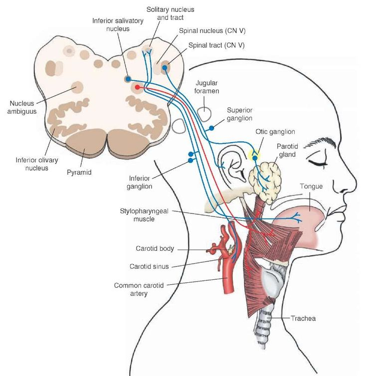 "The diagram illustrates the origin and distribution of sensory, motor, and autonomic branches of the glossopharyngeal nerve. The diagram also illustrates the anatomical arrangement of the inferior and superior ganglia associated with the peripheral sensory fibers that enter the brain through the glossopharyngeal and vagus nerves (cranial nerve [CN] IX and X, respectively). Cross section of the medulla shown in the ""face"" illustrates the principal sensory and motor nuclei associated with the…"