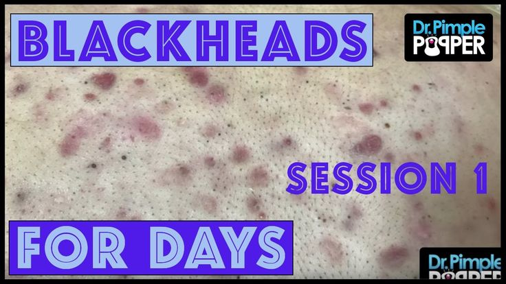 A blackhead is also called an open comedo (single for comedone), and it is a clogged pore in the skin that is open to the air. Keratin (skin protein) and sebum (oil) combine to block the pore. They are often found on the face and trunk. but they can be found anywhere on the body.  Blackheads...  https://www.crazytech.eu.org/blackheads-for-dayzzzz-with-dr-pimple-popper-session-1/