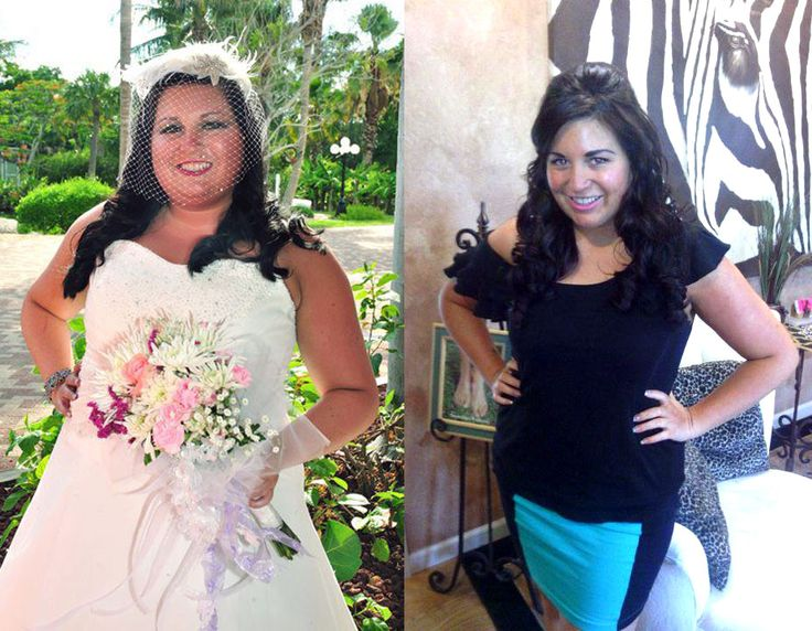 How quickly do you lose weight after lap band picture 10