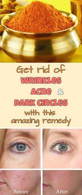 Get Rid Of Wrinkles Acne and Dark Circles With This Amazing Remedy #DarkCirclesRemedyDIY