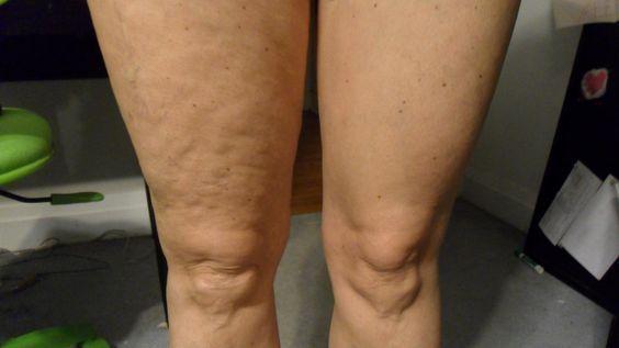 Resultado del tratamiento en una sola pierna del AGELOC GALVANIC SPA II