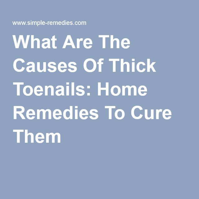 What Are The Causes Of Thick Toenails: Home Remedies To Cure Them