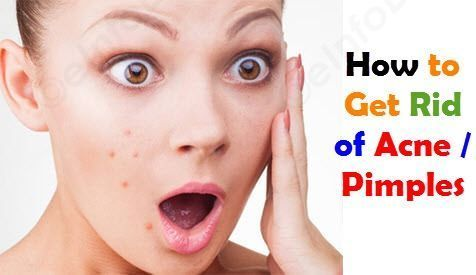 How to Get Rid of Acne / Pimples Naturally. What is Acne. Types of Acne. Causes of Acne. Natural Remedies for treating Acne. Home Treatment for Acne... Acne / Pimple is a small spot or papule. Acne is small skin lesions or inflammations of the skin in whi http://beautifulclearskin.net/category/no-more-acne/