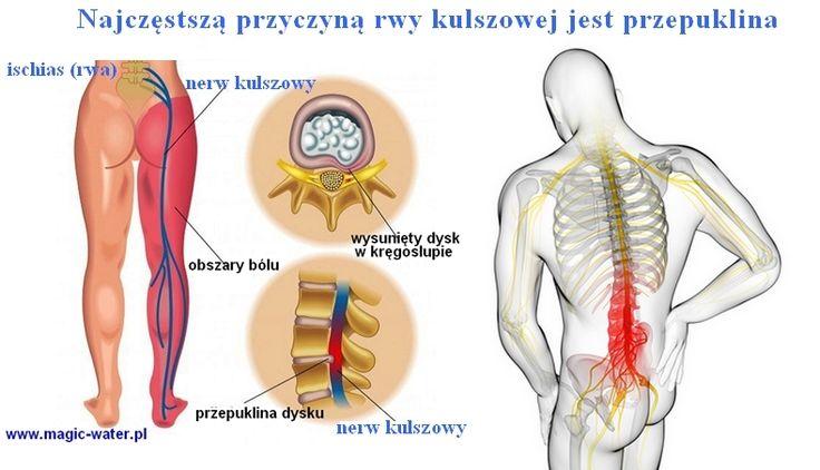 rwa- zapobiegaj powstaniu bólu
