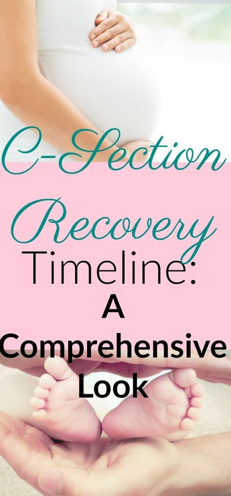 This article gave me a lot of hope while I was healing from my c-section. #csection #csectionrecovery #csectionrecoverytimeline