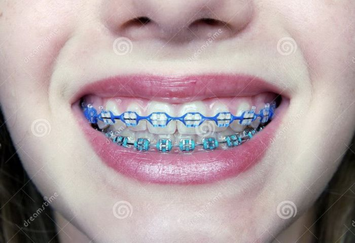 Braces Color Ideas Summer