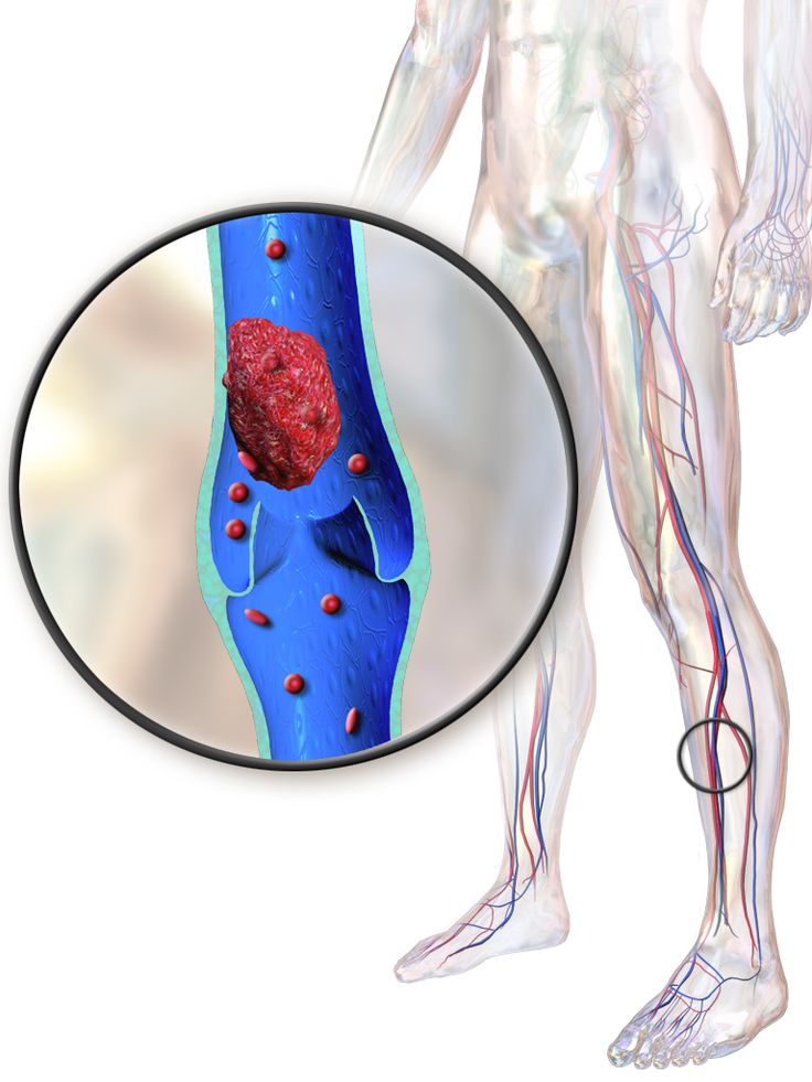 30 best dvt images on pinterest | nursing schools, health and, Human Body