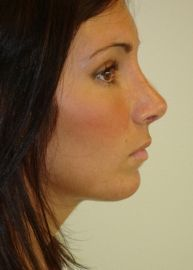 Rhinoplasty Before and After Pictures Philadelphia, Glen Mills, PA