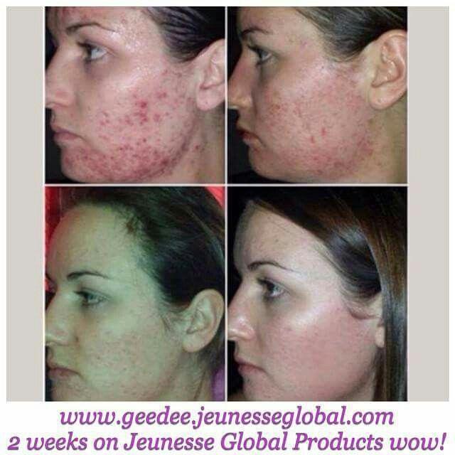 Without makeup Ask me how Shiraz.jeunesseglobal.com