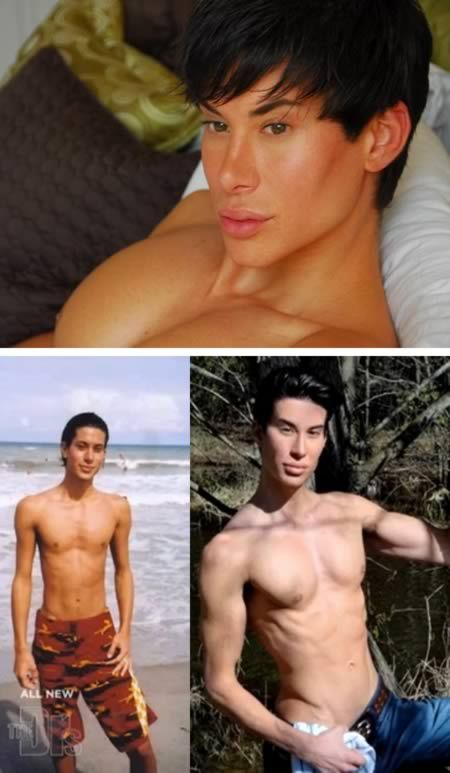 """Justin Jedlica - """"Living Ken doll"""".  $100,000 of procedures on the face and pec implants"""