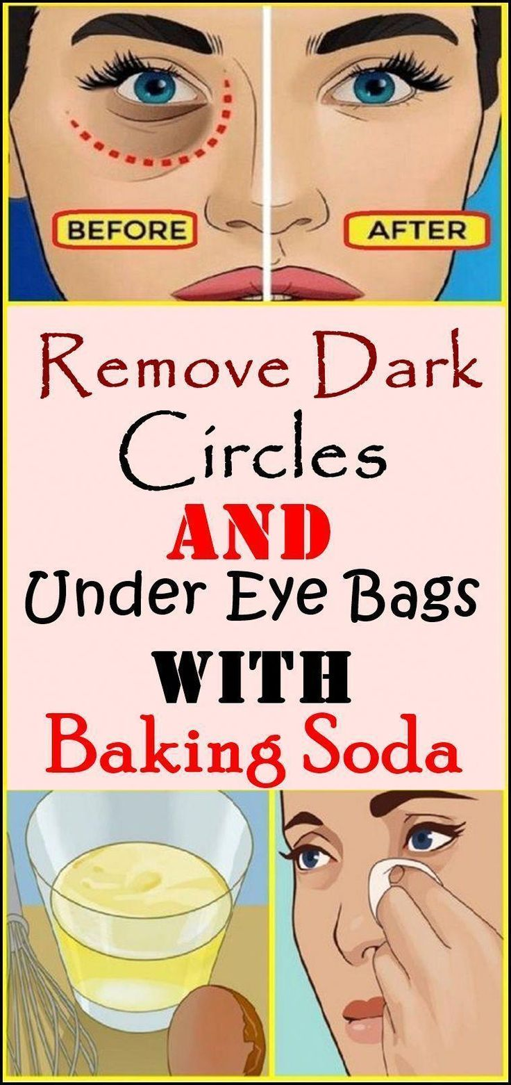 Effective home remedy for eliminating dark circles under
