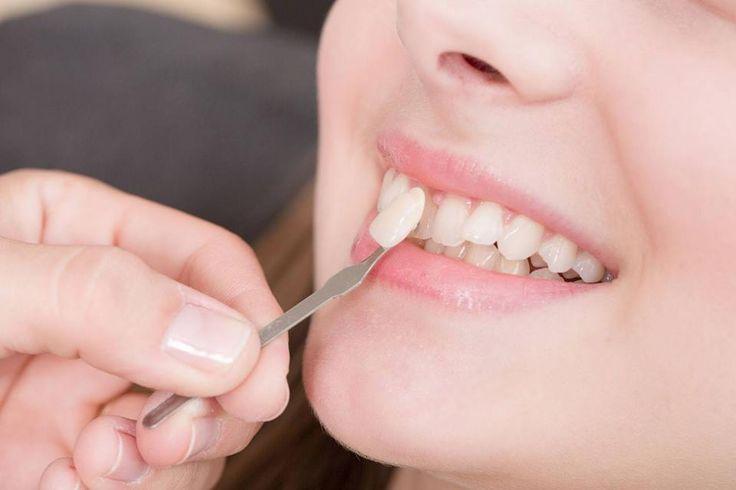 Logra una sonrisa deslumbrante #OdontólogosCol #Odontólogos  http://ow.ly/jHsp307saJJ