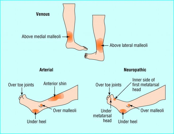 venous and arterial ulcers - Google Search