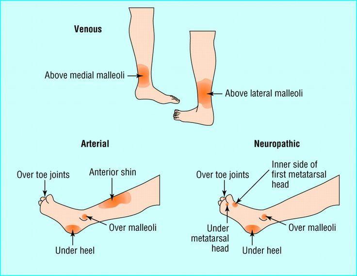 Venous ulcers - self-care