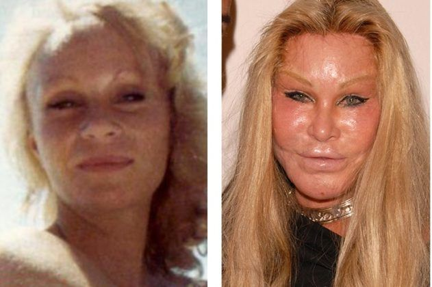 The 17th Most Famous Celebrity Plastic Surgery: 17 Before and After Photos #plasticsurgery #celebritysurgery #celebrityplasticsurgery #liposuction #breastaugmentation #lipssurgery