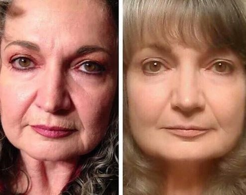 Face Fitness Exercises Will Return Your Face To Earlier Years