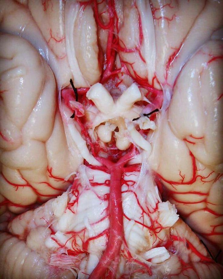 Un primo piano del Poligono di Willis e del Chiasma Ottico. Circle of Willis and Optic Chiasma.  #Anatomia