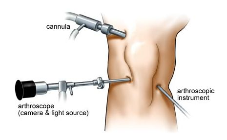 IBS Hospitals is the best in arthroscopic knee surgery in Delhi NCR - India is a procedure which generally takes between one and two hours and is carried out under general anesthesia. #IBSHospitals #kneesurgery #health #doctor