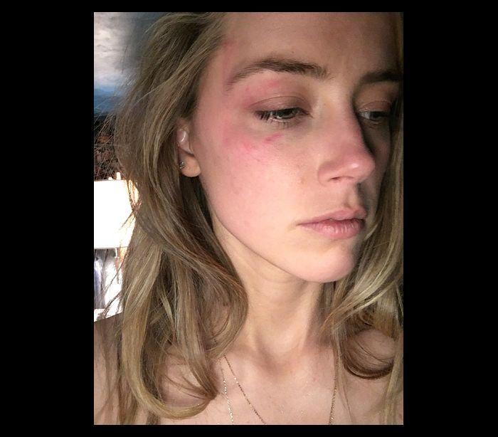 Todos os Detalhes e Imagens Sobre a Nova Polémica de Hollywood. Amber Heard Acusa Johnny Depp de Violência Doméstica | Portal Cinema