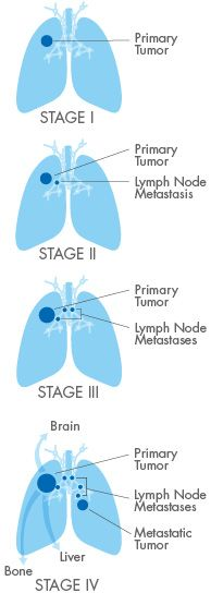 NSCLC lung cancer Staging