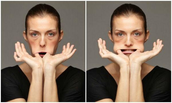 Il modello superiore con posti di pigmentary