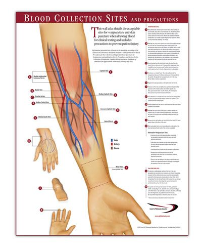 1000+ images about Phlebotomy on Pinterest | Study Guides, Draw ...