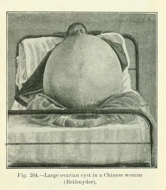Large ovarian cyst in a Chinese woman, 1900