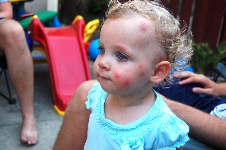 Bed Bug Bites On Children face.