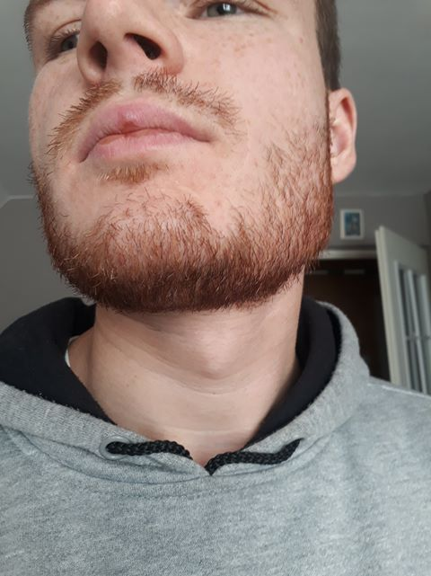 For the average facial hair