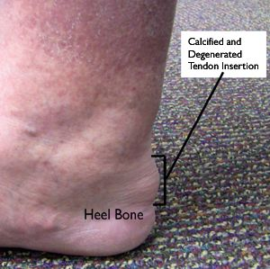 Achilles Tendinitis-OrthoInfo - AAOS