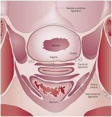 Complications of Cervical Cancer
