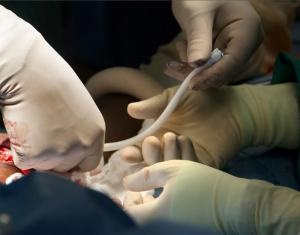 Surgeons implant bioengineered vein: Kidney dialysis patient first in U.S. to receive lab-grown blood vessel