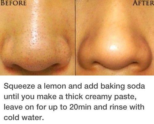Beauty tips for elimination of nose black spots