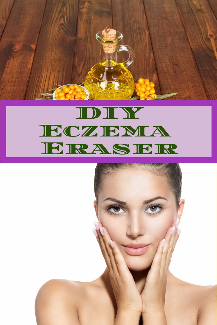 Is Eczema hassling you and sucking your interest to socialize? Worry not! This natural DIY Eczema Eraser is all you need to keep Eczema symptoms at bay - http://beautynaturalsecrets.com/diy-eczema-eraser-for-soothing-and-healing-your-skin/